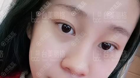在台美丽格做隆鼻手术前