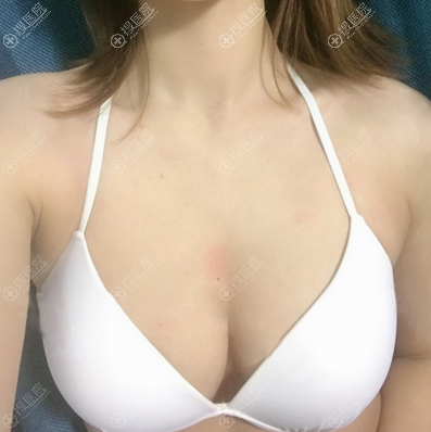 深圳美丽方案姚尧脂肪丰胸8个月效果图