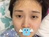 找深圳铭医刘昕做了眼综合手术,有了双眼皮大眼睛我可漂亮不少