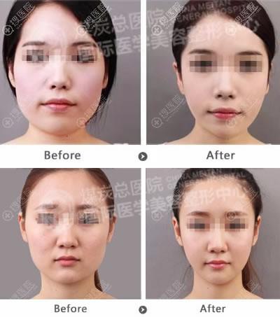 北京煤炭总医院整形科下颌角案例