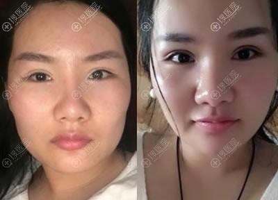 北京八大处靳小雷做颧骨手术案例