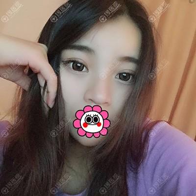 广州市佳人王高峰双眼皮术后恢复一个月效果