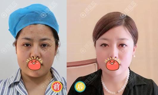 北京东方和谐冯庆亮面部吸脂案例