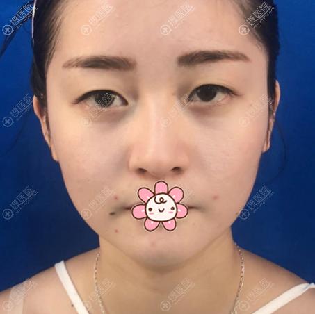 去上海华美割双眼皮术前照片