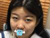 颜控找深圳米兰柏羽王志东做耳软骨复合隆鼻就因为塌鼻子不漂亮