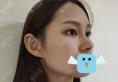 找深圳美莱周洪超做了隆鼻+缩鼻翼手术 做过鼻子的人都没看出来