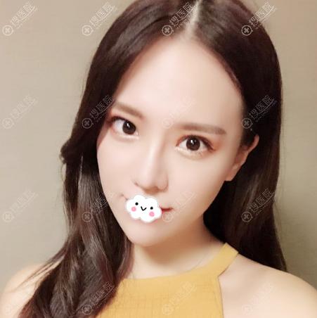 南京艺星整形蒋晟医生做的隆鼻案例