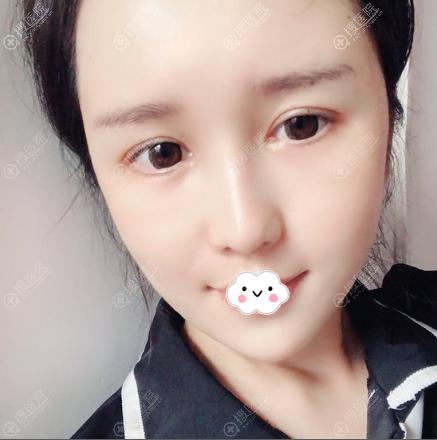 上海华美李健膨体垫下巴案例22天恢复效果图
