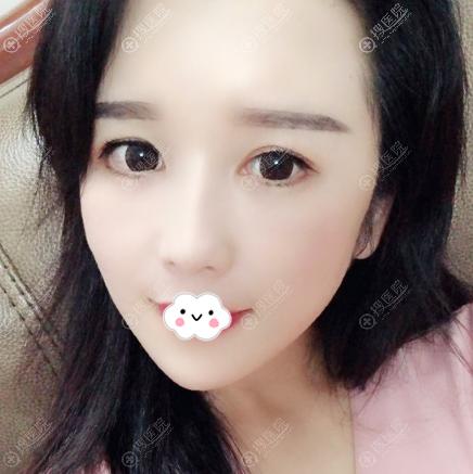 上海华美李健做的膨体垫下巴和脂肪填充案例