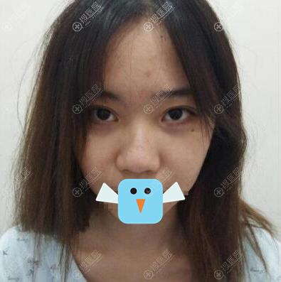 肋软骨隆鼻术前照片