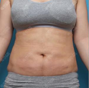 深圳回来腰腹吸脂术后即刻效果图