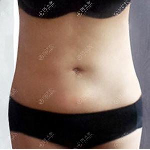 腰腹吸脂术后穿一周塑身衣效果