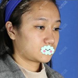 我找北京艺兴医疗美容医院谷亦涵做面部线雕提升恢复童颜日记