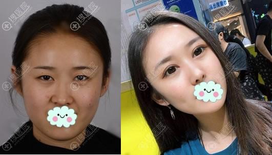 青岛博士整形双眼皮案例