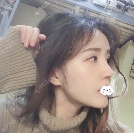 黄名斗医生隆鼻失败修复15天照片