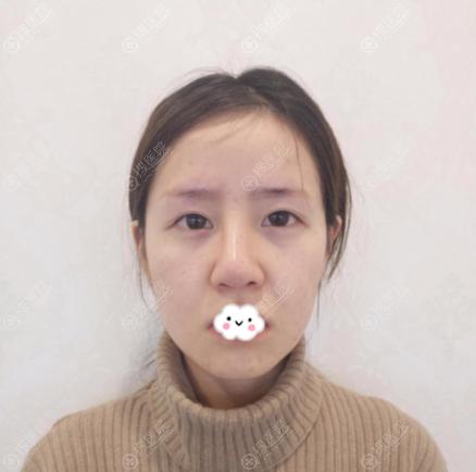 在南京美贝尔做双眼皮和隆鼻修复术前照片