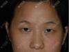 看双眼皮全面部脂肪填充案例了解深圳联合丽格整形曹品根怎么样