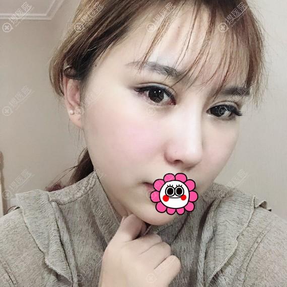 杭州华山连天美颧骨手术一个月效果