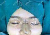 我是找的深圳南雅姚成红把我的线雕鼻改成了肋软骨+膨体隆鼻