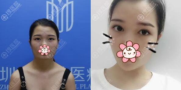 深圳美加美眼综合+玻尿酸丰下巴术前术后对比图