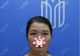 我这么美就是在深圳美加美做了芭比眼综合又找李莉玻尿酸丰下巴