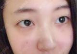 大连爱德丽格冯勇双眼皮做的咋样?全切双眼皮术后7天就消肿了