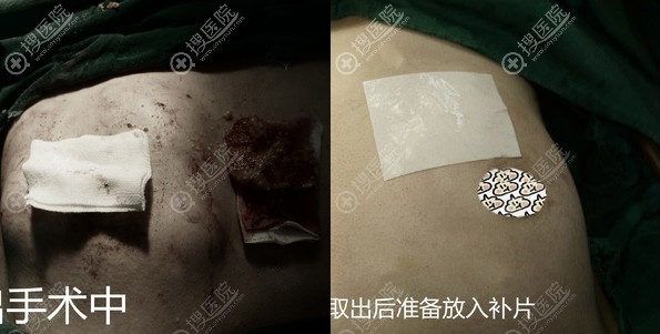 广州荔医清除奥美定手术中