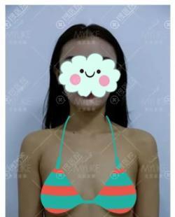 为了让万恶B罩杯变成D罩杯我到北京美莱美容医院做了隆胸手术