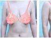 公开我花8万元找济南韩氏郭广科做人工韧带乳房上提恢复过程图