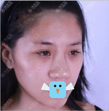 深圳美莱隆鼻术前照片