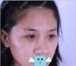 我好崇拜给我做了缩鼻翼的深圳美莱韩先奎医生,鼻综合效果好棒