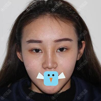 清潭FIRST李丙玟立体旋翼鼻术后效果图