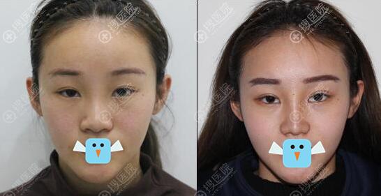 清潭FIRST李丙玟双眼皮鼻综合术后对比效果图
