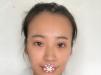 找上海韩镜任钟赫做完脂肪填充后不仅脸型饱满了皮肤也变水嫩了