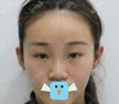 韩国清潭FIRST李丙玟双眼皮鼻综合整形案例分享术后对比效果图