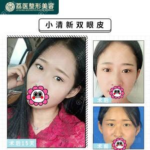 广州荔医双眼皮对比效果