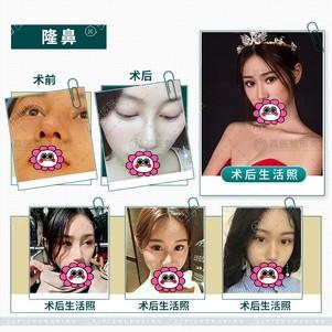 广州荔医隆鼻恢复过程图