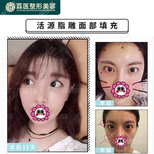 广州荔医脂肪填充对比案例