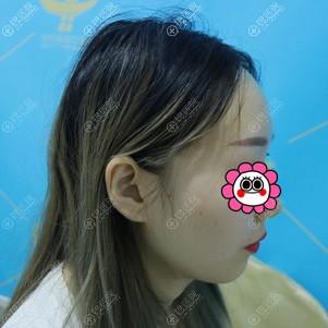 假体垫下巴后悔死了,分享我到广州中科美找邓咏做的硅胶垫下巴