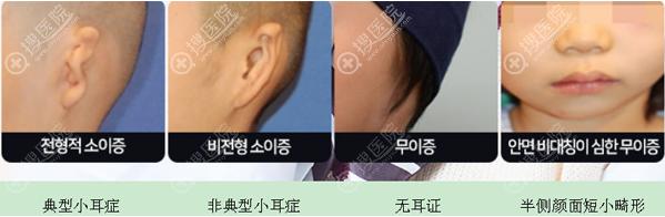 公开韩国普罗菲耳整形医院郑在皓院长治疗小耳畸形术后恢复照片