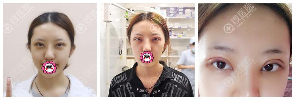双眼皮1-3天恢复图