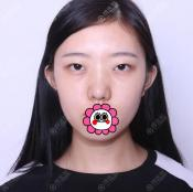 广州曙光割双眼皮好吗?揭晓王娟做的双眼皮和玻尿酸填泪沟案例