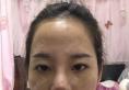 看了上海仁爱医院刘先超的隆鼻案例后决定找他为我做鼻综合隆鼻
