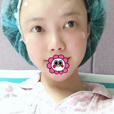 到广州荔医做脂肪全脸填充术后头天