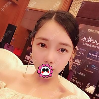 广州荔医自体脂肪填充全脸恢复两个月案例