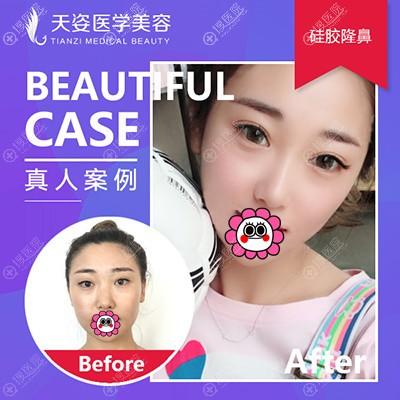 广州天姿隆鼻案例