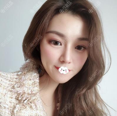 上海薇琳整形医院曹芳医生做鼻子怎么样