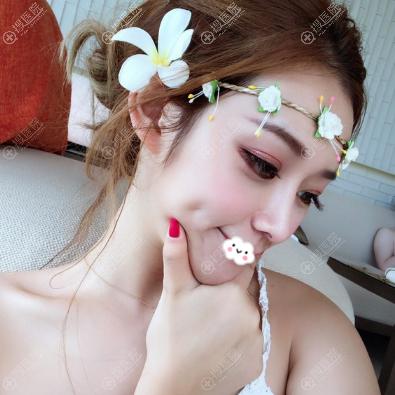 上海薇琳医美隆鼻案例半个月效果图