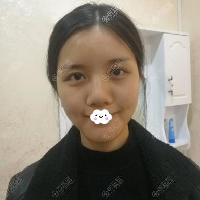 深圳联合丽格热玛吉治疗术前照