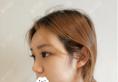 找上海薇琳医美曹芳做完鼻综合隆鼻子后朋友们都夸我变好看了